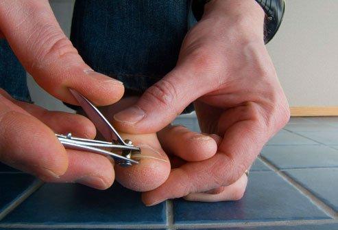 подстригать ногти